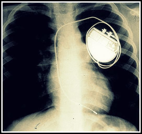 Pacemaker X ray