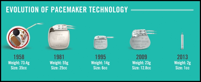 Evolution-of-pacemakers